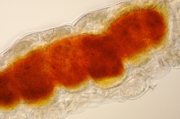 [ Typical tardigrade as found in Munich city pavement moss. Detail, red stomach-intestine region ]