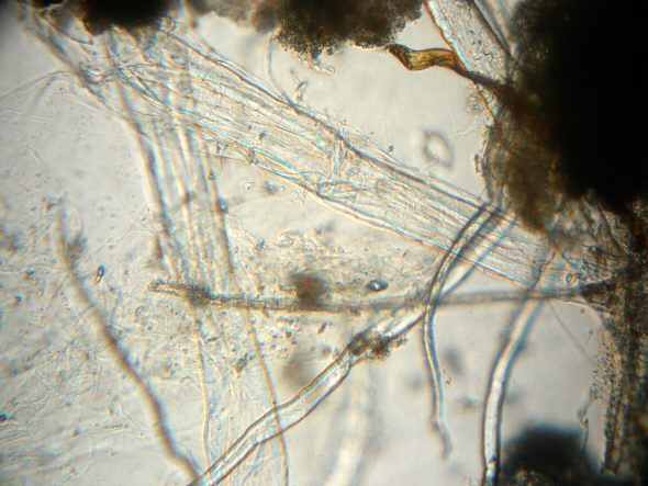 [ Microscopic view of the river flood water sample ]